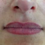 Lippen_Referenzen