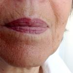 Lippen_Referenzen3