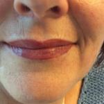 Lippen_Referenzen2
