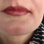 Lippen_Referenzen4